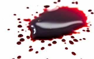 Видеть во сне кровь другого человека: толкование в различных сонниках