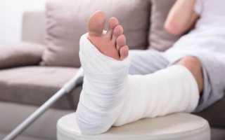 Что значит, если снится перелом ноги: толкования по сонникам