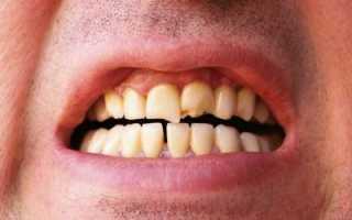 Сонник: что означает отколотый зуб во сне?