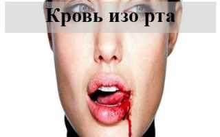 К чему человеку может сниться кровь изо рта
