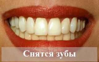 К чему снятся зубы: толкование по сонникам