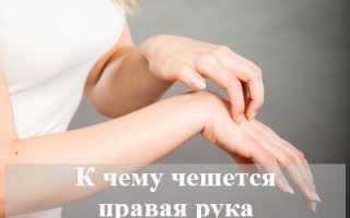 К чему чешется правая рука — суеверия и народные приметы