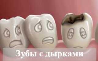 Толкование сна: к чему снятся зубы с дырками
