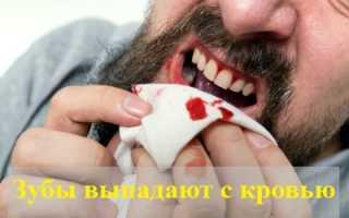 К чему снится, что зубы выпадают с кровью: толкования сонников