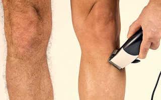 К чему снятся волосатые ноги мужчинам и женщинам