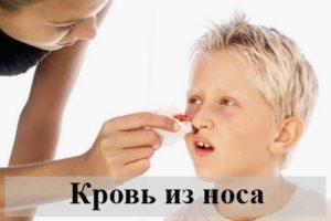 Что означает видеть во сне, как идет кровь из носа, толкования по сонникам