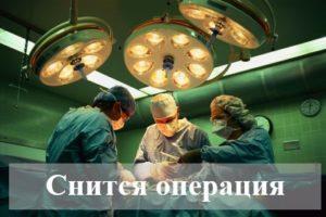 К чему снится операция: толкования по сонникам