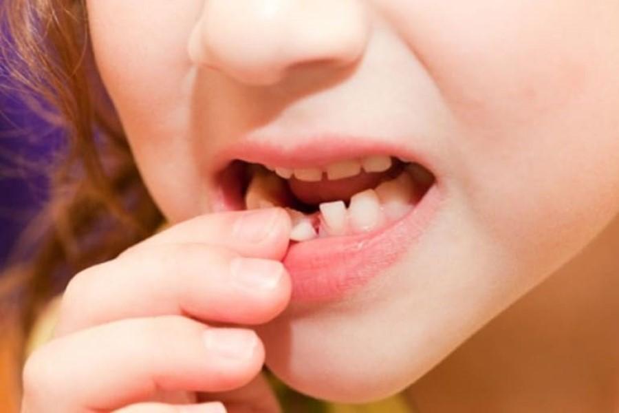 К чему снится шатающийся зуб: толкование по сонникам