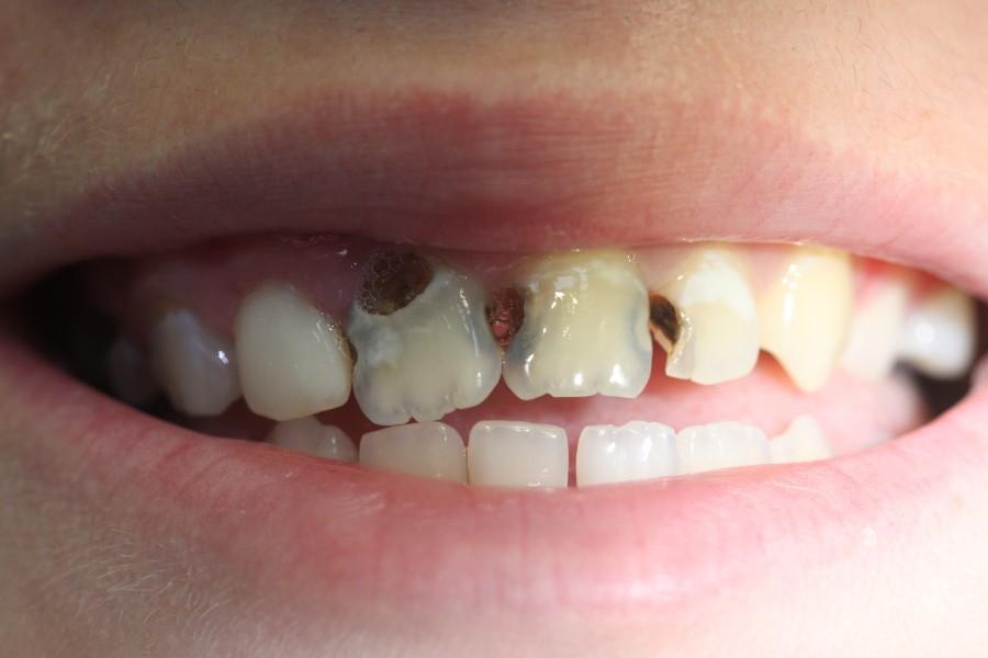 Как толкуется сон по сонникам, в котором приснились гнилые зубы у себя или другого человека