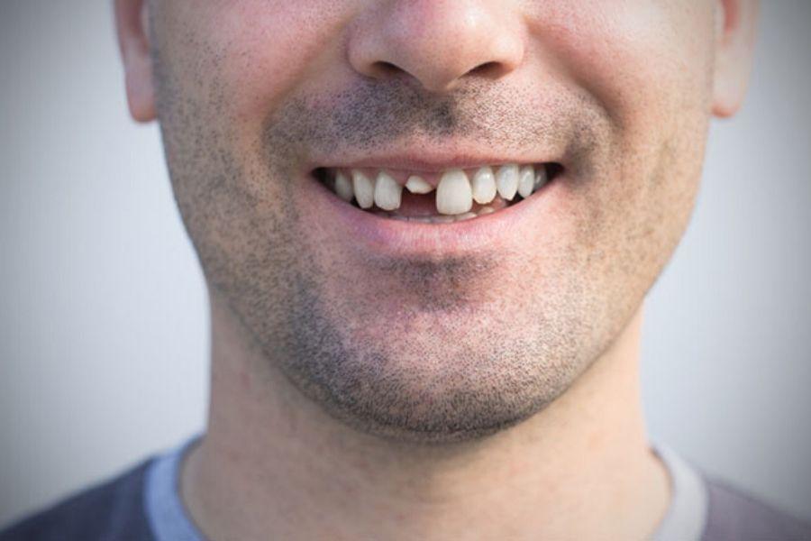 Сонник: что обозначает сломанный зуб во сне