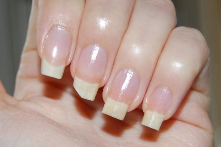 Сонник: что предвещают сновидцу сломанные ногти?