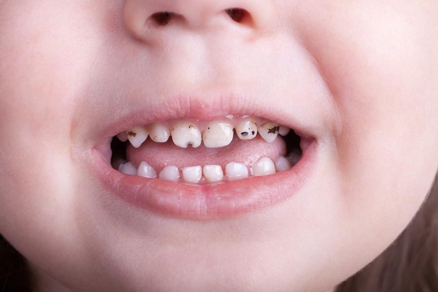 Сонник: к чему видеть во сне больные зубы